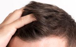 Saç Ekiminde Olası Komplikasyonlar